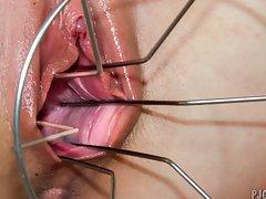 Edita's vaginal inspection
