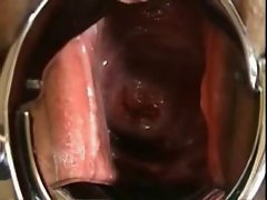 Sensual japanese Extreme EW cervix, speculum, close-up